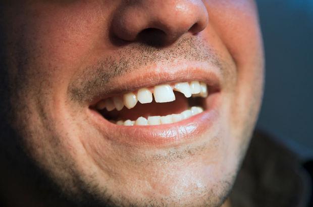 Konya Çürük & Kırık Diş Tedavisi - Restoratif Diş Tedavisi & Fiyatları